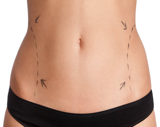 liposuction-recovery