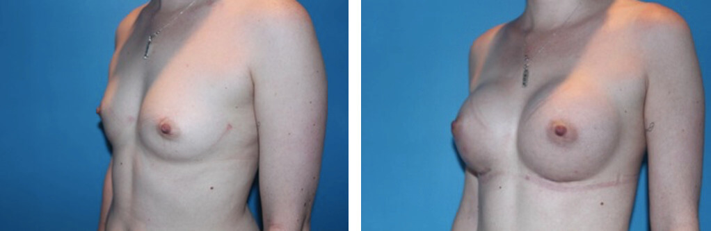300 cc smooth round silicone breast augmentation