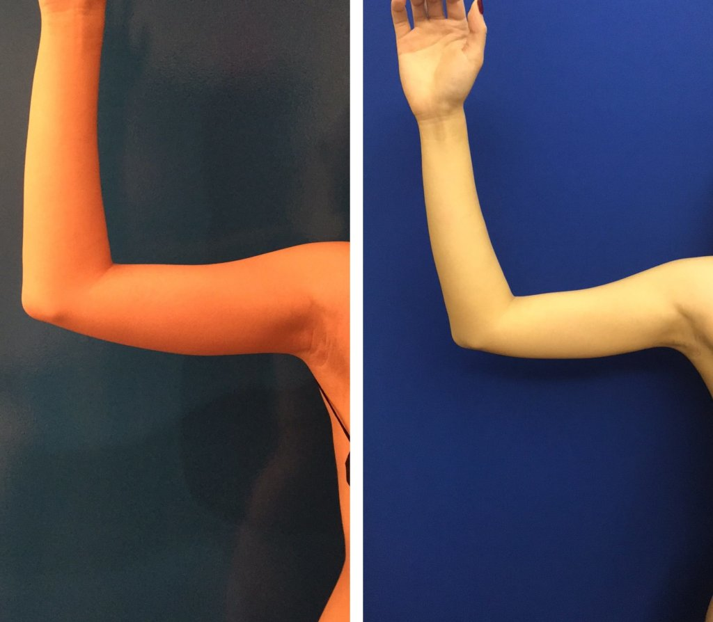 Minimally Invasive Arm Liposuction