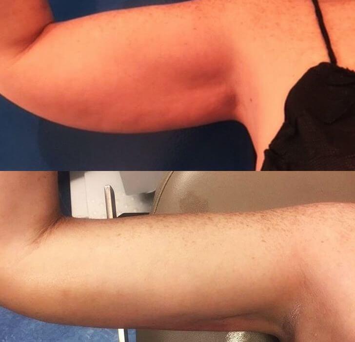 Female arm