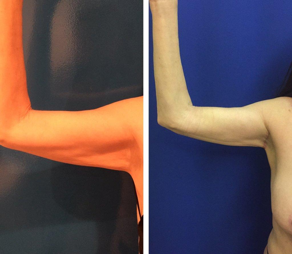 Plasma Mini Arm Lift