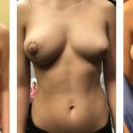 Vertical or lollipop breast lift for asymmetry
