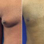 male-gynecomastia