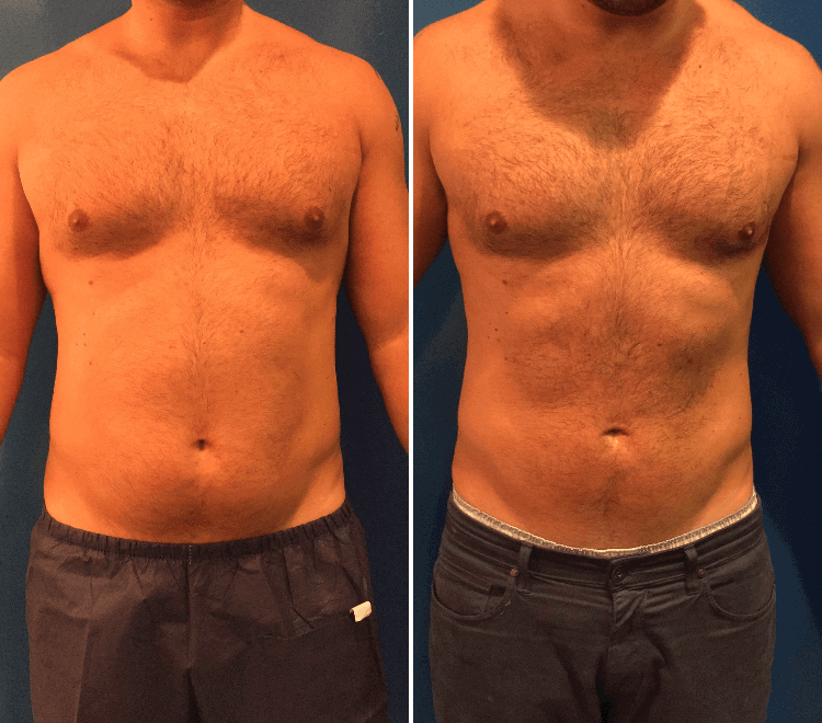 male-lipo-before-and-after