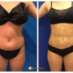 minimally-invasive-liposuction-before-after