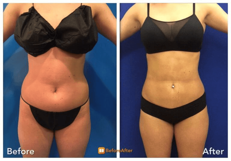 Tumescent Liposuction | Neinstein Plastic Surgery