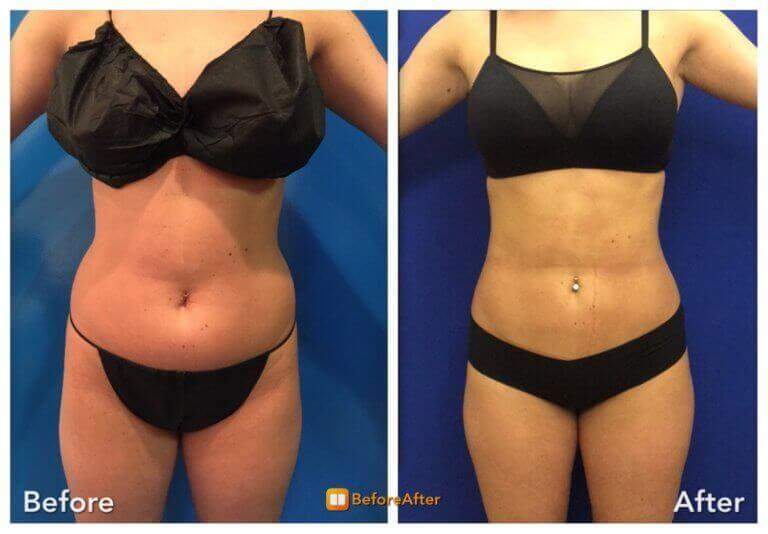 vaser-liposuction-before-after