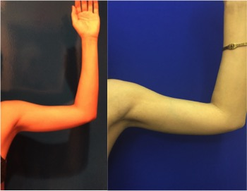 before after arms liposuction neinstein plastic surgery