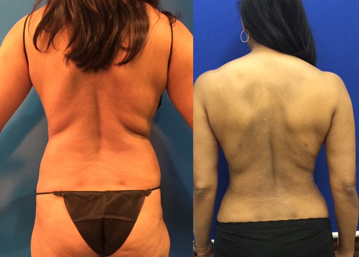 ded5f49e1c Before   After  Back Liposuction
