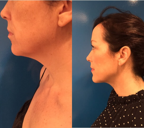 female-neck-lipo