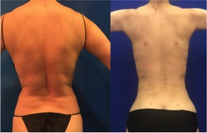 Female-back-lipo