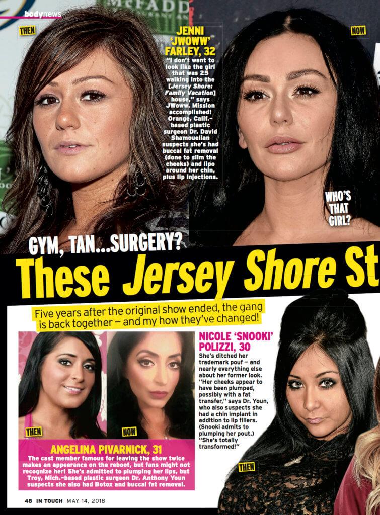 Jersey Shore Cast Plastic Surgery Neinstein Plastic Surgery