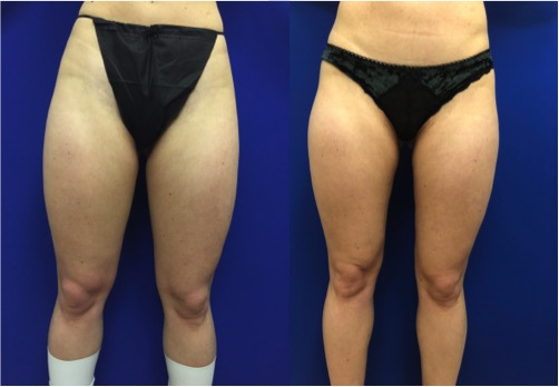 thigh-liposuction