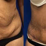 tummy-tuck-lipo-before-after