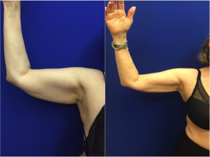 arm-liposuction-before-aftet