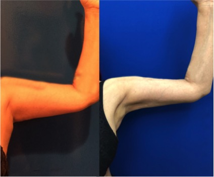 female-arm-lipo