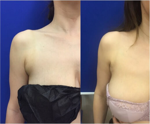 Arm Pit Amp Bra Bulge Lipo Before Amp After Neinstein