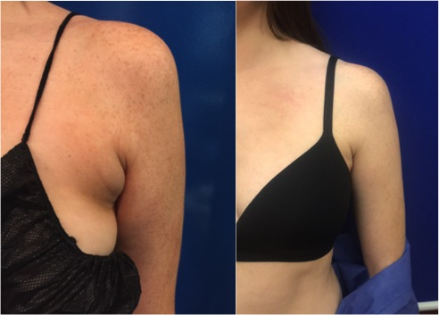 armpit-liposuction
