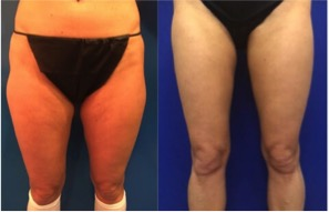 female-thigh-lipo
