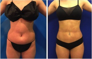 female-tummy-lipo