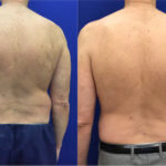 male-back-liposuction