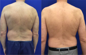 male-liposuction-before-and-after-back