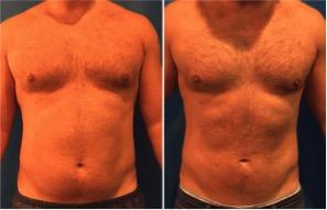 male-stomach-lipo