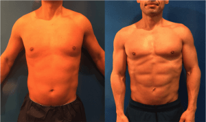 male-liposuction-before-and-after-stomach