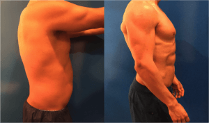 male-liposuction-before-and-after-waist