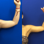 arm-lipo-before-after