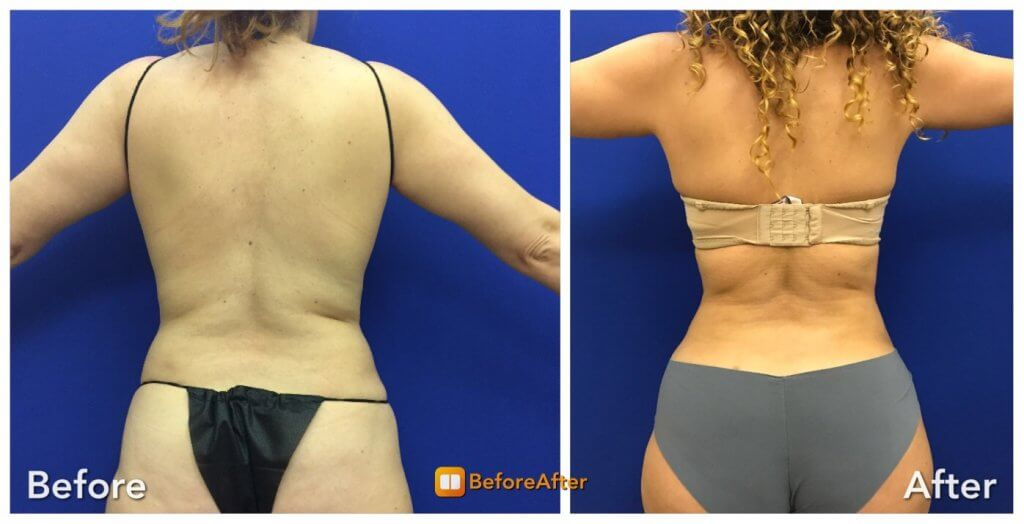 female-back-lipo-before-after