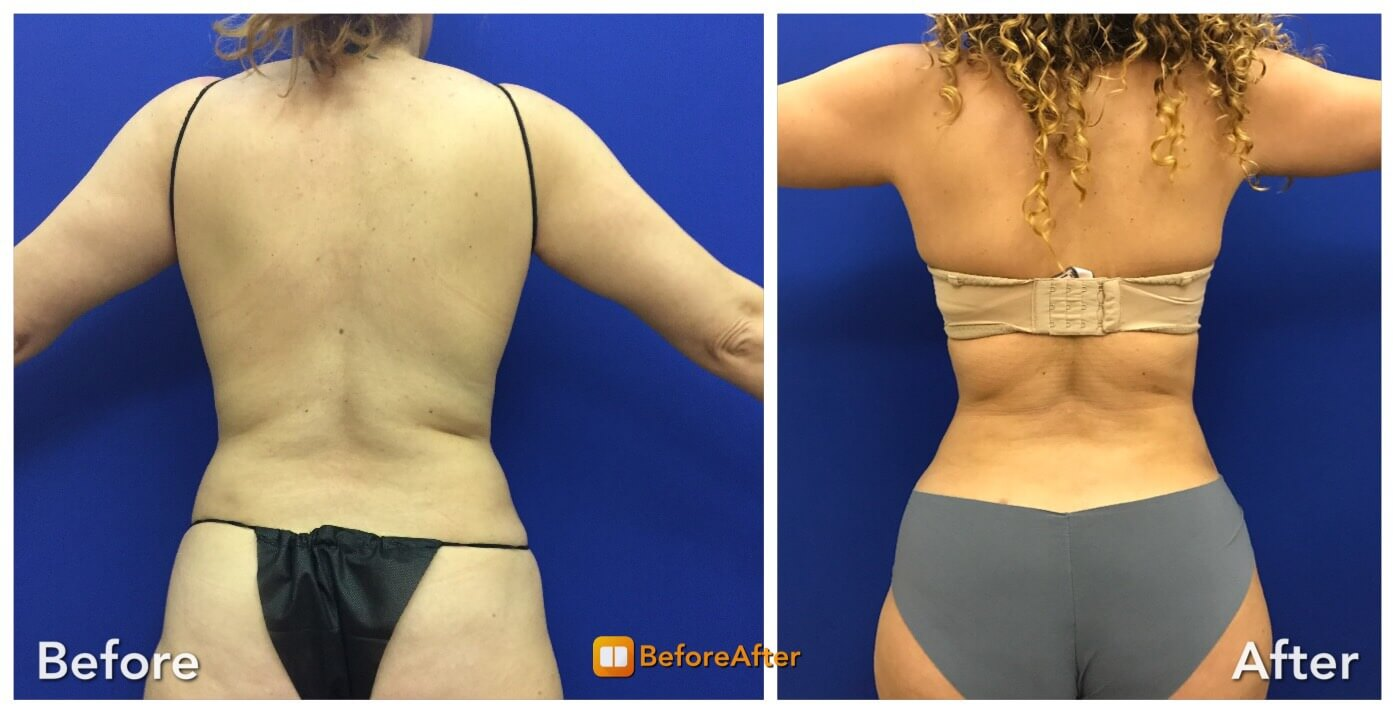 Before & After: Back Liposuction | Neinstein Plastic Surgery