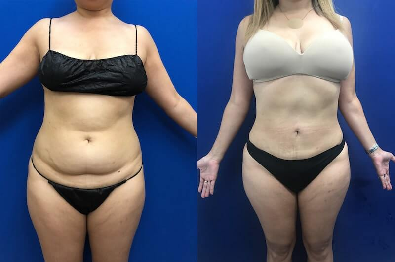 female-abs-lipo-before-after
