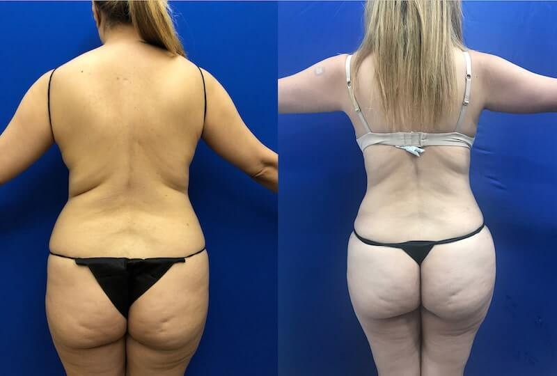 before-after-back-liposuction