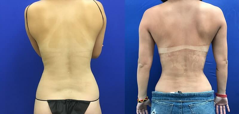 female-back-waist-before-after