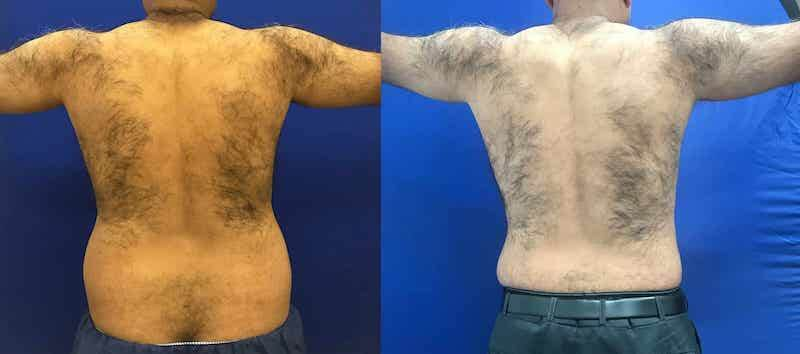 before-after-male-lipo-waist