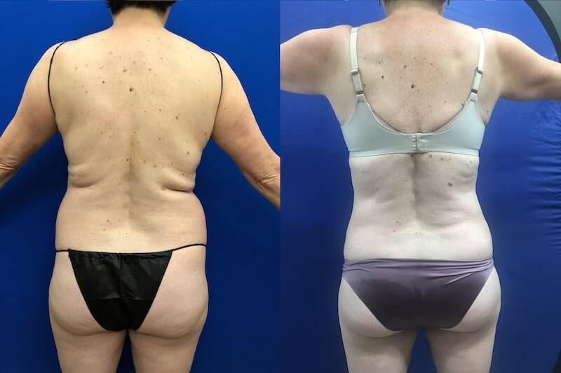 before-after-back-vaser-lipo