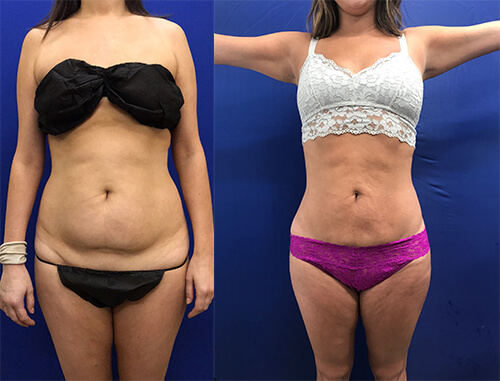 female-waist-lipo-before-after