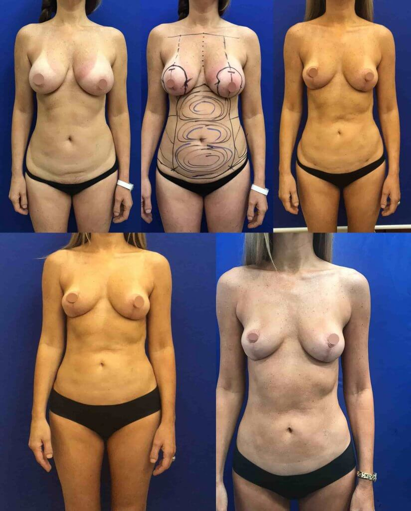 before-after-breast-reduction