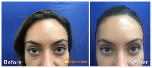 Tear Trough Fillers Injections NYC | Neinstein Plastic Surgery