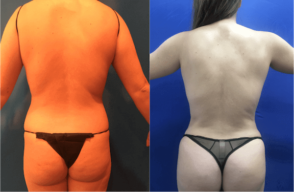 femal-back-before-after
