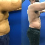 male-abs-lipo-side-before-after