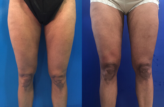 thigh-lipo-before-after