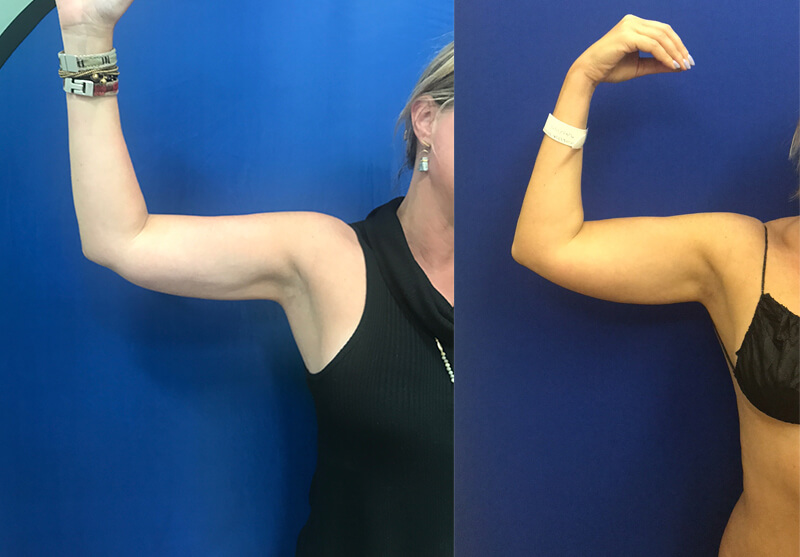 Before-After-Female-Arm
