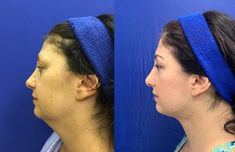 Before-After-neck-lipo