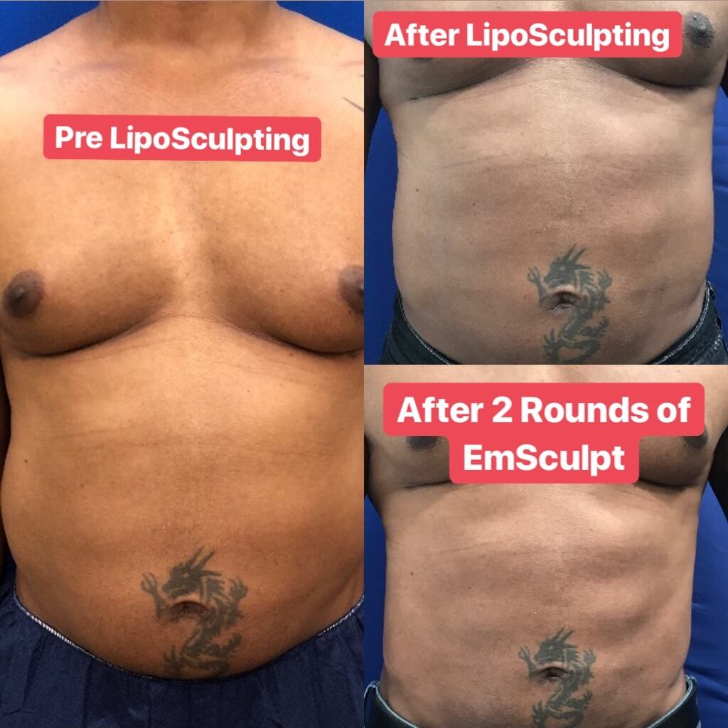 before-after-male-emsculpt