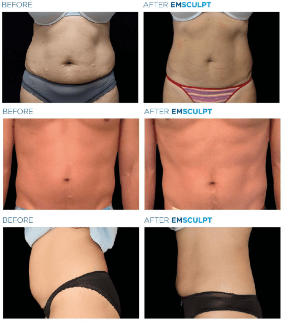 emsculpt-before-after-1