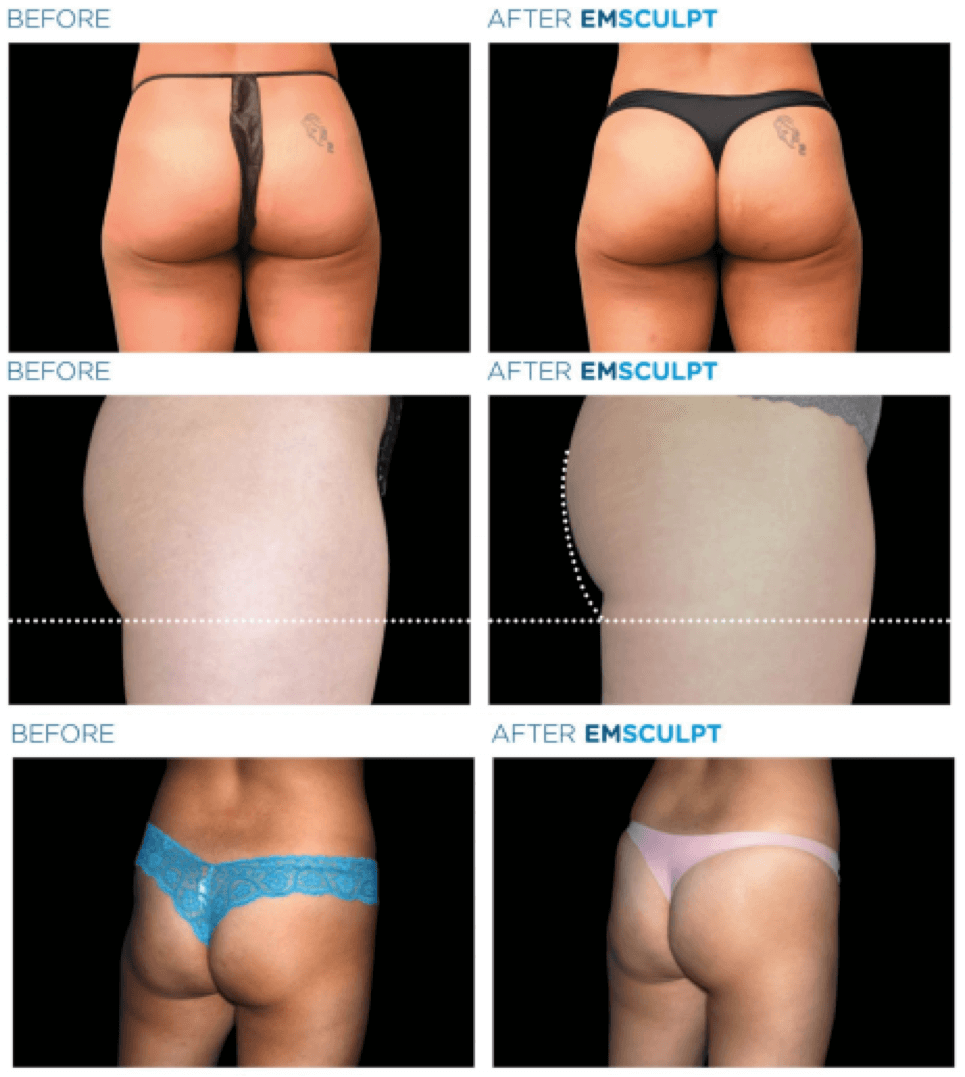 emsculpt-nyc-before-after-2