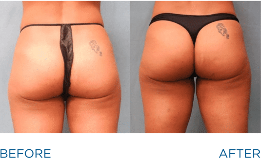 emsculpt-butt-lift