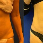 before-after-lipo-abs-waist